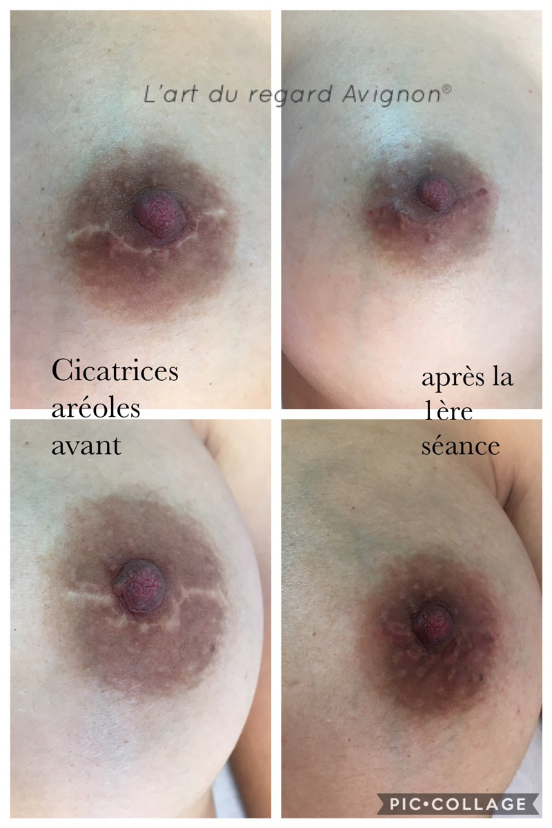 cicatrices-areoles-dermo-reconstruction