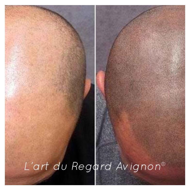 pigmentation-reparatrice-cheveux